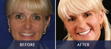 woman's before and after makeover